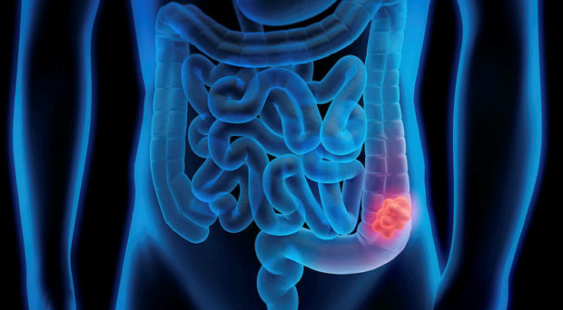 Can an artificial intelligence device increase polyp detection during colonoscopy?